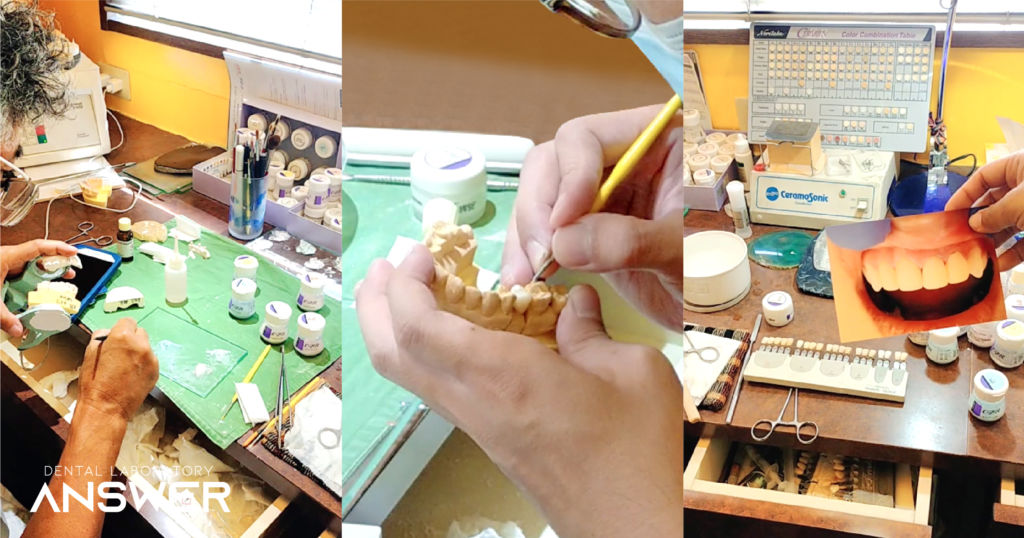 สุดยอดฝีมือการทำฟันปลอมจากญี่ปุ่น ที่ ANSWER LAB โอกินาว่า