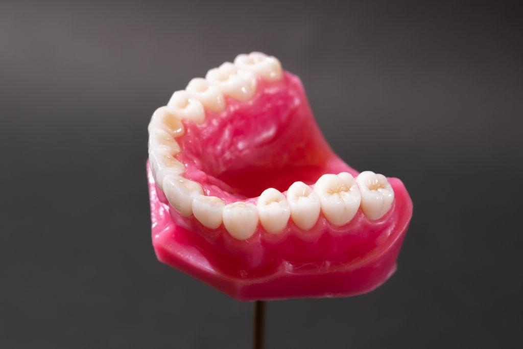 ฟันปลอมสวยสมจริงจากประเทศญี่ปุ่น Answer Dental Labatory